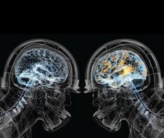 """A study released in February has shown that """"reversing brain damage"""" among NFL players is possible! Cognitive scores, blood flow, and the self-reported symptoms of mood, memory, and motivation were all improved by athletes who followed a """"brain-healthy protocol"""".  This study is significant to not only the football community but anyone with brain damage due to injury,  trauma, or abuse."""