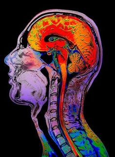 Normal brain, coloured magnetic resonance imaging (MRI) scan. Sagittal (side) view of a human head and neck, showing the brain and upper spinal cord