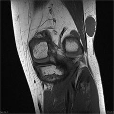 Synovial sarcoma | Radiology Case | Radiopaedia.org