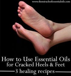 It's very hard to help cracked heels especially those that flake and bleed. However, using these healing essential oils for cracked heels, you might have a