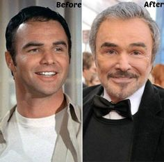 Burt Reynolds Plastic Surgery Before and After Photo