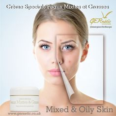 This antibacterial cream reduces oiliness, pimple development and tightens the pores. The perfect cream to treat skin imperfections. #gernetic #gerneticuk #skincare #beautysalon #beautytreatment #problemskin #acne #bestproduct #madeinfrance Dilated Pores, Skin Problems, Pimples, Oily Skin, Im Not Perfect, Face Products, Skin Care, Cream, Creme Caramel