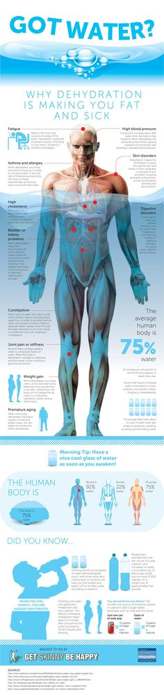 This infographic is about the importance of water for human body The dehydration and the implications for the body of the people.
