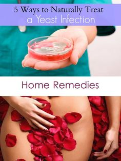Home Remedies for Vaginal Yeast Infection that work ...
