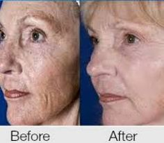 Image result for before and afters with instantly ageless Pure Beauty, Anti Wrinkle, Revolutionaries, Anti Aging, Skin Care, Pure Products, Image, Youth, Skincare Routine