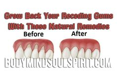 by Healthy Definition The situation of receding gums happens when the tissue of the gum around the teeth corrodes and it looks like your gums recede backwards. Then a large surface of the teeth is …