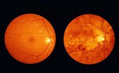 Diabetic Retinopathy is retinopathy (damage to the retina) caused by complications of diabetes mellitus, which can eventually lead to blindness.