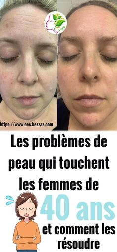 Peau D'orange, Anti Ride, Les Rides, Solution, Movie Posters, Healthy Skin, Glowing Skin, Dimples, Film Poster