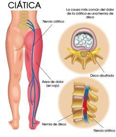 Reflexology treatment for knee pain 7 most important reflex points los 8 mejores tratamientos naturales para el dolor de la citica ccuart Gallery