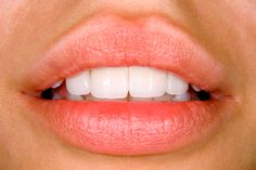 veneers to lengthen front teeth - Google Search