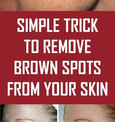 Brown spots age spots dark spots sun spots liver spots it all means the same Age Spots On Face, Brown Spots On Face, Wrinkle Remedies, Skin Care Remedies, Dark Spots On Legs, Warts Remedy, Dark Circles Makeup, Skin Growths, Cold Treatment