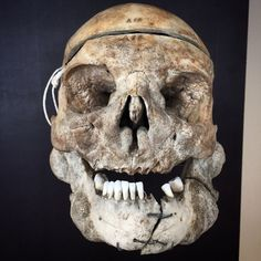 The skull shows an overgrowth of the bones due to the disease Leontiasis ossea. Leontiasis Ossea, also known as leontiasis or lion face, is a rare medical condition, characterized by an overgrowth of the facial and cranial bones. It is not a disease in itself, but a symptom of other diseases.