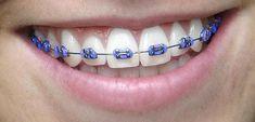orthodontist purple – teeth braces – Lingual Do you understand there ar U. Pink Braces, Black Braces, Light Blue Braces, Braces Bands, Braces Tips, Dental Braces, Teeth Braces, Dental Care, Braces Transformation
