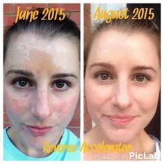 A few years ago Lauren began to develop melasma (the dark spots on her face) because of medication she was taking. She had tried every face wash under the sun and even topical lotions that burnt away layers of skin. She finally decided to give Rodan + Fields a try and has never looked back. Her results are amazing! These are clinically proven products! If you have melasma or dark spots, we have the solution. Time to give me a call, send me a note or a text! #greatskincare #da