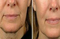 Même si notre peau ne montre pas encore de signes de l'âge, il est bon de commencer à utiliser ces traitement le plus tôt possible pour avoir une peau ferme et douce le plus longtemps possible. Avoir un visage jeune et ferme est le résultat de secrets de beauté qui permettent d'entretenir l'hydratation et de maintenir