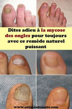 Everything about nail fungus, including remedies. Everything about nail fungus, including remedies. Treating Toenail Fungus, Toenail Fungus Remedies, Toenail Fungus Treatment, Nail Treatment, Fungus Toenails, Fingernail Fungus, Toe Fungus, Fingernail Health, Infection Fongique