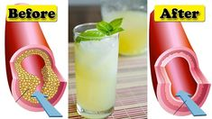 Take 4 Tablespoons Of This Every Morning And Say Goodbye To Clogged Arteries, High Blood Pressure, And Bad Cholesterol! – Holistic Family Tips Home Health Remedies, Natural Home Remedies, Herbal Remedies, Natural Healing, High Cholesterol Levels, Reduce Cholesterol, Healthy Cleanse, Healthy Juices, Vitamin K