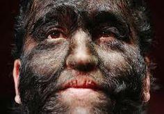 Síndrome do mundo moderno : Homem lobo: a foto que prova a maldade humana