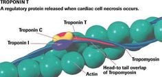 New Troponin T Test Predictive in Stable Coronary Artery Disease