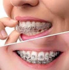 Are you looking for a Walk in Dentist Near me? At URBN Dental, we provide Comprehensive Dental Care and Emergency Dentist Care at an Affordable price. Dentist Open on Saturday for New Patients. Dentist Nyc, Dentist Clinic, Dentist Near Me, Local Dentist, Best Dentist, Emergency Dentist, Houston Tx, Dental Care, Dental Caps