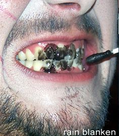 Rotten teeth zombie makeup tutorial from costume expert, Rain Blanken. - Real and Horrifying Zombie Makeup Tricks http://diyfashion.about.com/od/Horror-Makeup/ss/Real-and-Horrifying-Zombie-Makeup-Tricks_11.htm