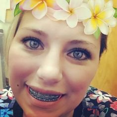 I've had several ask so here's the latest news: I should get my braces off around Thanksgiving-ish! Braces Off, Dental Braces, Teeth Braces, Braces Problems, Adult Orthodontics, Cute Braces Colors, Braces Girls, Brace Face, Lips