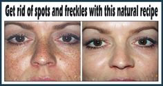 Get Rid Of Spots And Freckles With This Natural Recipe Made From Only 2 Ingredients