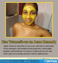 Acne - Use Turmeric as an Acne Remedy