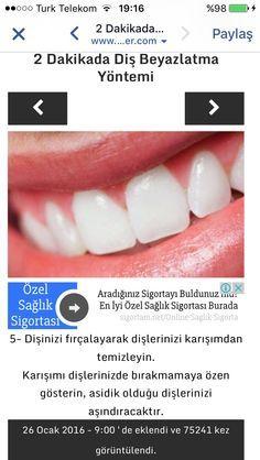 Diş beyazlatma 4