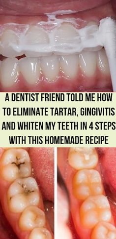 Wellness Great: A Dentist Friend Told Me How To Eliminate Tartar, Gingivitis And Whiten My Teeth In 4 Steps With This Homemade Recipe
