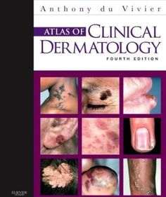 Read Books Atlas of Clinical Dermatology (PDF, ePub, Mobi) by Anthony Du Vivier Online for Free Free Books Online, Reading Online, Open Library, Library Books, Read Books, Coffee And Books, Science Books, Ebook Pdf, Textbook