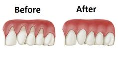 3 NATURAL Remedies to STOP Receding Gums: ) GREEN Tea ALOE VERA COCONUT Oil. Receding gums can be caused by many things, but almost always point to gum disease. See what can cause damage to your gums and allows bacteria to grow. Gum Health, Teeth Health, Healthy Teeth, Oral Health, Dental Health, Dental Care, Health Tips, Health Benefits, Healthy Life