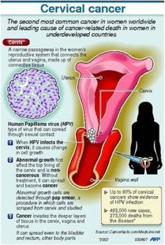 HPV Infection and Cervical Cancer Development