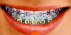 ผลการค้นหารูปภาพสำหรับ brackets – For Women Dental Braces, Teeth Braces, Braces Smile, Dental Care, Power Chain Braces, Pink Braces, Teeth Correction, Braces Retainer, Dental Health