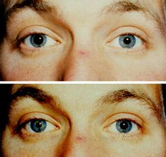 Tonic pupil (OD) bottom image shows reaction to .125% pilocarpine (tonic pupil constricts, no reaction seen in normal pupil)