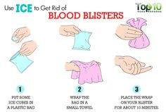 Top 10 Home Remedies  How to Get Rid of Blood Blisters