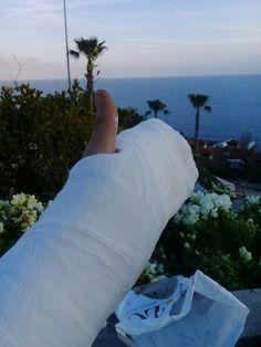 my hand phalanks fractures material Medstar Hospital Operation in Antalya