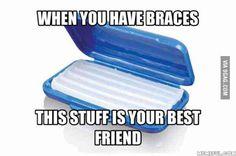 When you have braces Braces Meme, Braces Tips, Dental Braces, Teeth Braces, Dental Care, Braces Problems, Getting Braces, Cute Braces, Brace Face