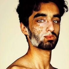 make + vitiligo + poliosis Pretty People, Beautiful People, Beautiful Eyes, Women With Freckles, Photo Portrait, Portrait Photography, Beauty Portrait, Underwater Photography, Beauty Around The World