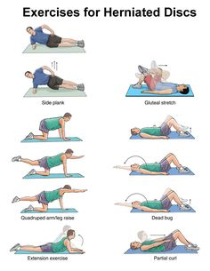 EXCLUSIVE PHYSIOTHERAPY GUIDE FOR PHYSIOTHERAPISTS: Exercise for Herniated disc/ Exeercise for disc prolapse/exercise fo slipped disc.