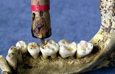 The Indus Valley Civilization has yielded evidence of dentistry being practiced as far back as 7000 BC. This earliest form of dentistry involved curing tooth related disorders with bow drills operated, perhaps, by skilled bead craftsmen. The reconstruction of this ancient form of dentistry showed that the methods used were reliable and effective. Cavities of 3.5 mm depth with concentric grooves indicate use of a drill tool. The age of the teeth has been estimated at 9000 years.