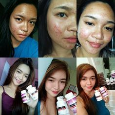 Buy Frontrow Luxxe White Enhanced Glutathione Most Effective Skin Whitening Supplement. the Best Skin Whitening Supplement for Men and Women. Kojic Acid, Vitamins For Skin, Grape Seed Extract, Body Organs, Detox Your Body, Even Skin Tone, Beauty Industry