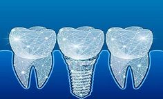 Denken Sie, dass Zahnimplantate so viel kosten in Reutte In Tirol? (Preise ansehen) Implant Dentistry, Dental Implants, Essen To Go, Stück Pizza, Cake Decorating Turntable, Hummingbird Cake Recipes, Human Teeth, Master Cleanse, Bird Cakes