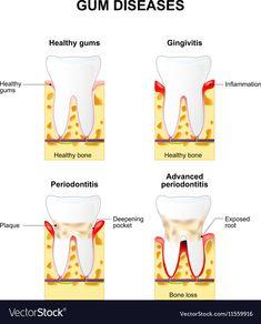 Gum Health, Dental Health, Dental Care, Dental Hygiene, Dental Posters, Dental Problems, Teeth Care, Natural Home Remedies, Teeth Cleaning