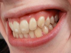This is a MILD case of dental fluorosis. If you really want to see how bad it can be, google for some frightening images of severe dental fluorosis.