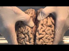Introduction: Neuroanatomy Video Lab - Brain Dissections - YouTube