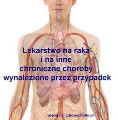 Lekarstwo na raka i inne chroniczne choroby wynalezione przez przypadek