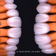 E.max crowns BL3. @drfirasosman @jason__lionel @denti_pro @danville_conrad @styleitaliandentistry @stomgo @labo_dentaire #makeup… #DentalCrownRoots Dental Logo, Dental Art, Dental Teeth, Dental Photography, Dental Aesthetics, Cute Tooth, Teeth Shape, Perfect Teeth, Dental Veneers