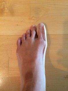 Domácí recepty na haluxy neboli vybočené palce bez operace. Mějte zase krásné nohy! - Blogy - ŽENY S.R.O. Nordic Interior, Healthy Nails, Physical Therapy, Health Fitness, Beauty, Exercises, Number, Halloween, Over Knee Socks