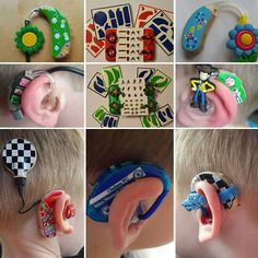 Custom designed hearing aids for kids